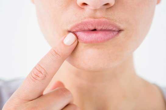 geschwollene lippen und zunge